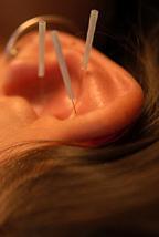 Cleveland Auricular Acupuncture / Cleveland Detoxification Acupuncturist