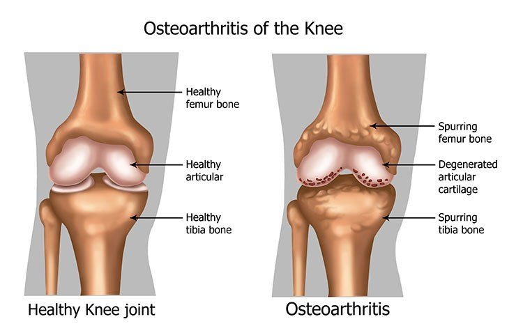 Osteoarthritis Pain Relief In Cleveland , OH - Cleveland  Acupuncture Clinic