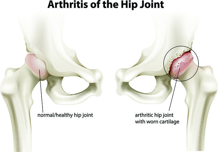 Arthritis Pain Relief In Cleveland , OH - Cleveland  Acupuncture Clinic