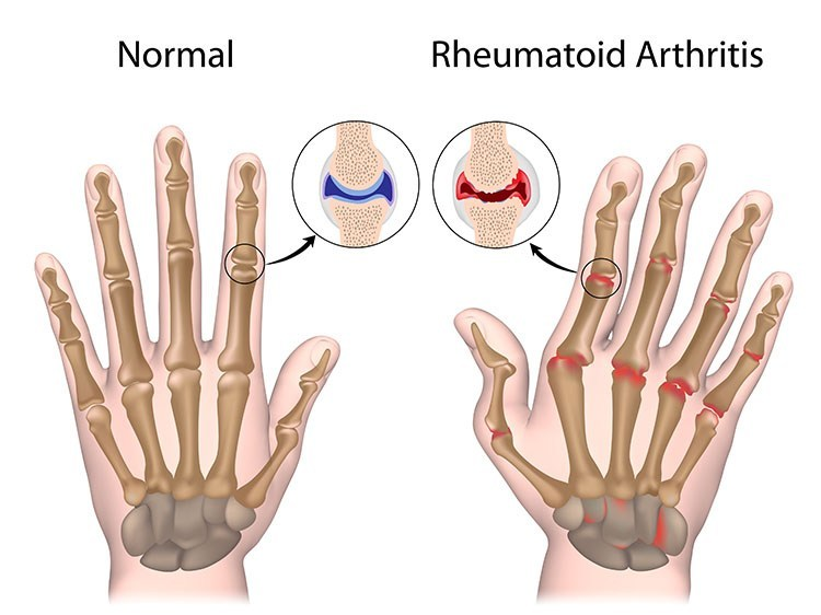 Rheumatoid Arthritis Pain Relief In Cleveland , OH - Cleveland  Acupuncture Clinic